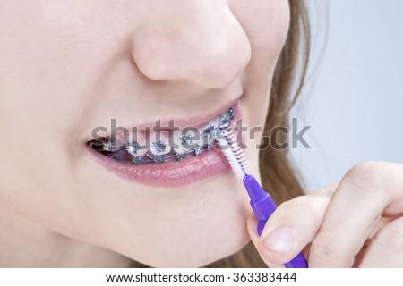 Dental Hygiene Concepts. Closeup Shot of Caucasian Teenage Girl Using Bristle Teeth Brush for Brackets. Horizontal Image Orientation - stock photo