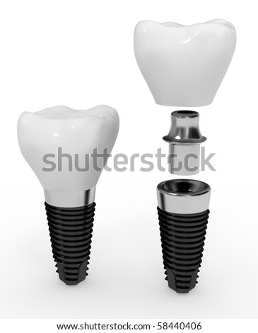 dental implant and its elements