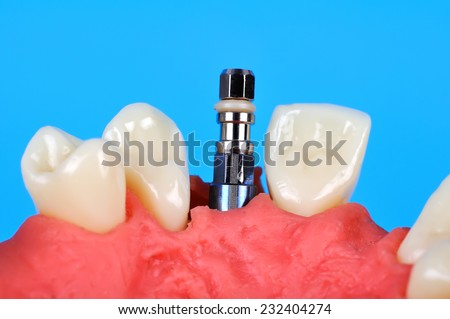 Dental implant implanted in jaw bone, close up - stock photo
