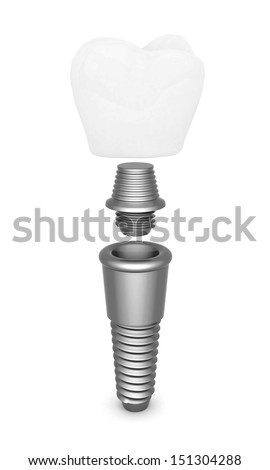Dental implant isolated on white background - stock photo