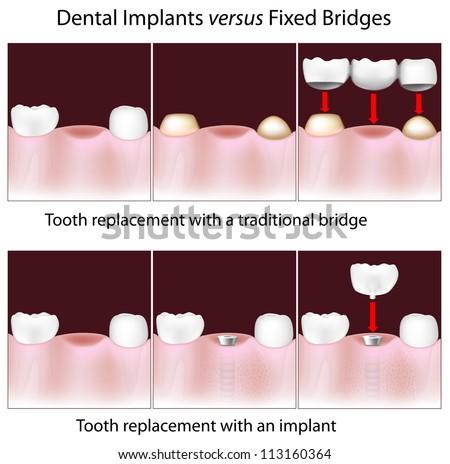 Dental implants versus fixed bridges - stock photo