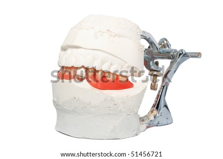 Dental Lab Articulator with dental prosthesis - stock photo