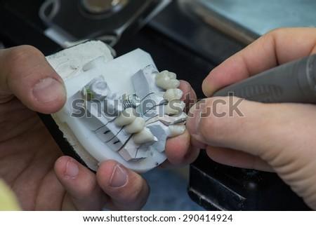 Dental laboratory, manufacturing dental prostheses  - stock photo