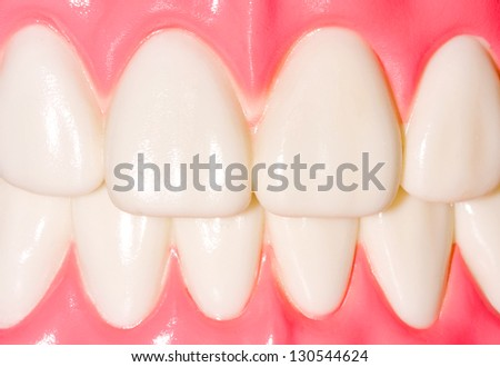 Dental model of frontal teeth - stock photo