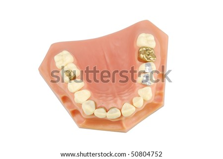 dental model showing different types of treatments (gold crown, porcelain veener, gold inlays, amalgam and composite fillings) - stock photo
