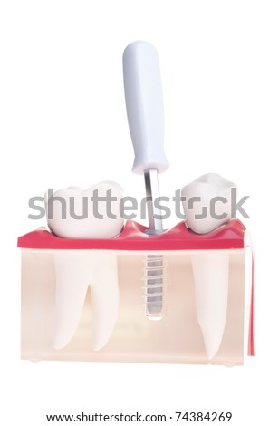 dental model with implant placement with screwdriver isolated on white background - stock photo