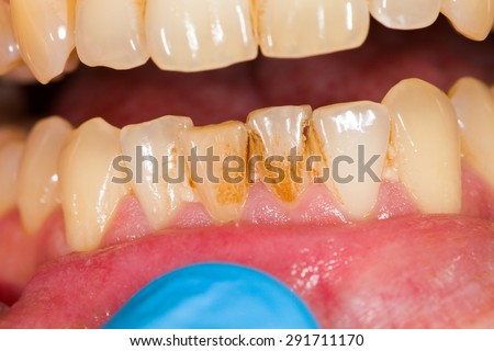 Dental plaque on denture, sign of smoking habits. - stock photo