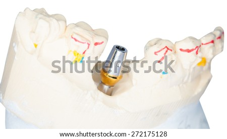Dental Prosthetic laboratory, technical shots on white background. - stock photo