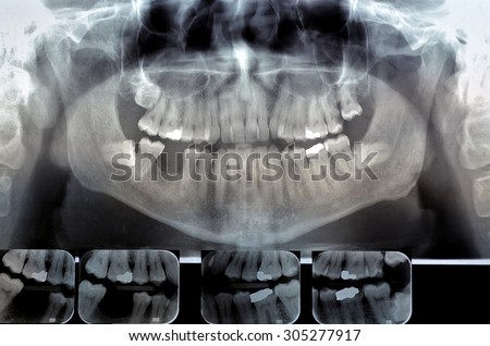 Dental radiography (ortopanoramica) Digital x-ray teeth scan. Panoramic negative image facial of adult male.
