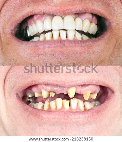 Dental rehabilitation - stock photo