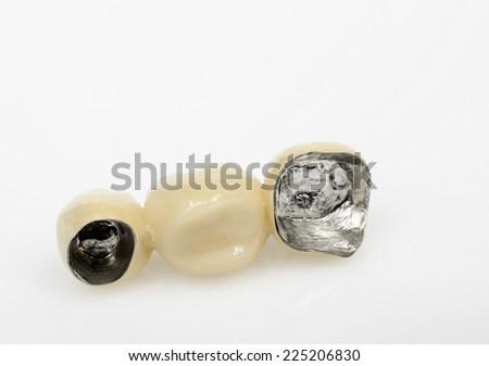 dental technology, non -precious metal with ceramics - stock photo