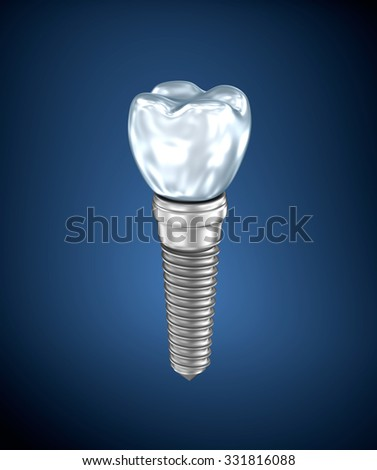 Dental titanium implant  - stock photo