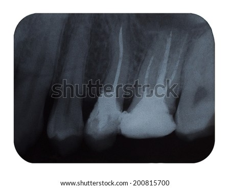 Dental X-Ray isolated on White Background