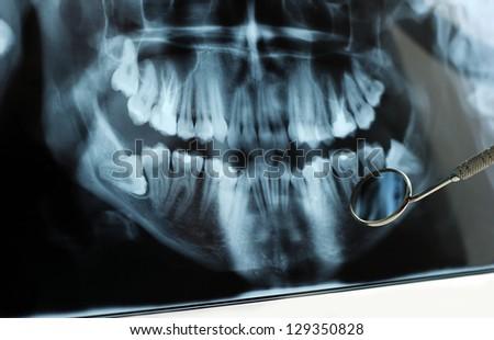 Dental x-ray reflected in dental mirror. - stock photo