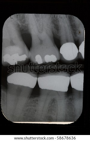 Dental X-ray, Vertical Bitewings, Right Pre-molar