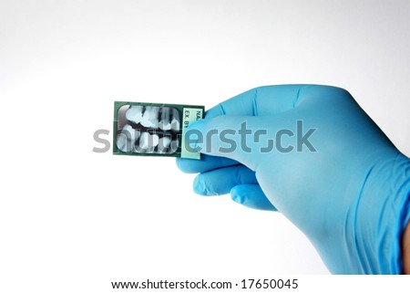 Dentist checking an x-ray of human teeth. Isolated on white, - stock photo