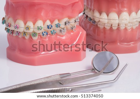 Dentist demonstration teeth model of varities of orthodontic bracket or brace with flesh pink gums and dentist tool
