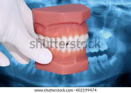 dentist hand show dental model over x-ray - stock photo