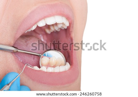 Dentist mirror reflecting the inside of lower teeth - stock photo