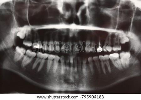 Dentist Tooth Radiology Anatomy Stock Photo Royalty Free 795904183