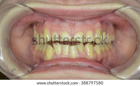dentistry, teeth, pathology, abrasion, mouth, smile, worn, dentition, bending, - stock photo
