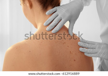 Dermatologist examining patient in clinic, closeup