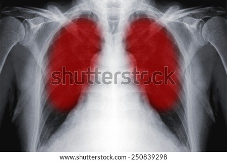 Detail of an x-ray film of lungs - stock photo