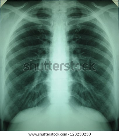 Detail of an x-ray of lungs - stock photo