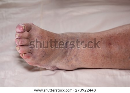 Detail of ill senior female swollen leg with damaged toes and nails. - stock photo