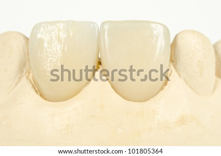 detail of plaster model and artificial incisors - stock photo