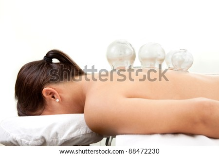 Detail of several cups placed on back of female in acupuncture cupping treatment