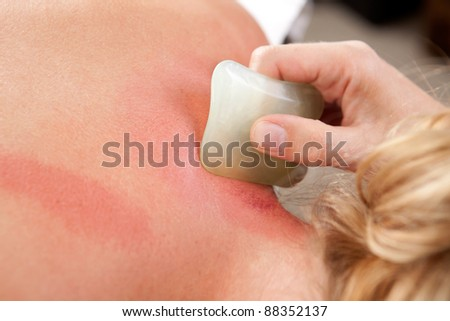 Detail showing redness on skin during a gua sha acupuncture treatment - stock photo