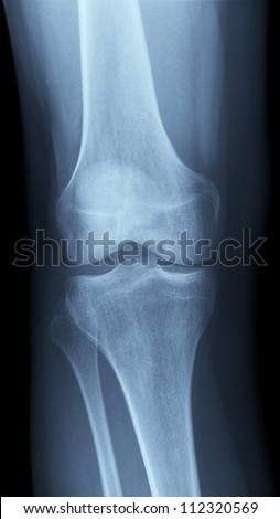 Detailed X-ray of a healthy human right knee. Image created using modern digital radiography