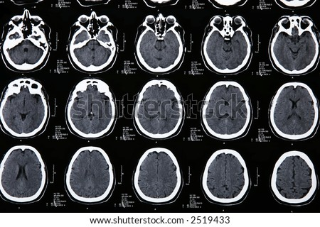 details Magnetic resonance of a brain - stock photo