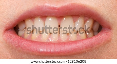 Diastema between the upper incisors is a normal feature - stock photo