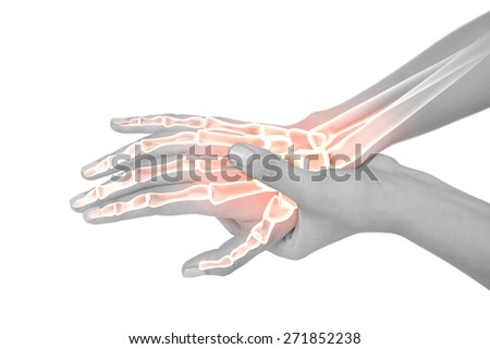 Digital composite of Highlighted bones of woman with hand pain - stock photo