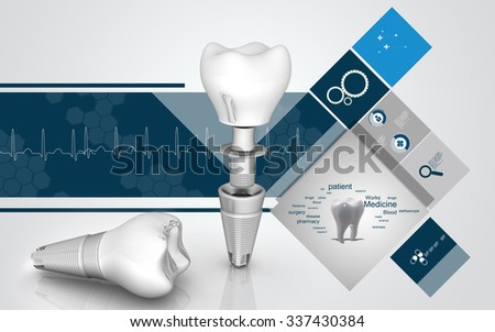Digital illustration of  Dental implant in colour  background - stock photo