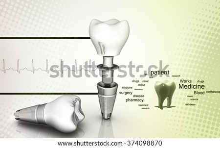 Digital illustration of  Dental implant in colour  background