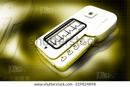 Digital illustration of  ECG in green co lour  background - stock photo