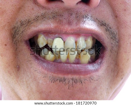 dirty teeth in the Mouth.,Unattractive teeth,denture