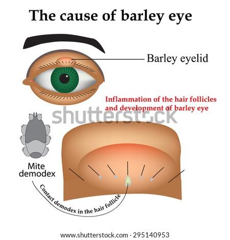 snellen eye chart instructions