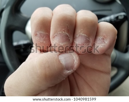 disgusting bitten or chewed fingernails on hand in automobile or car