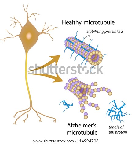 Disintegrating microtubules in Alzheimer's disease - stock photo