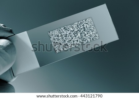 DNA microarray,  chip or biochip,  array of nano  spots attached to a glass surface to measure  levels of large numbers of genes. Science concept. Blue colored image - stock photo