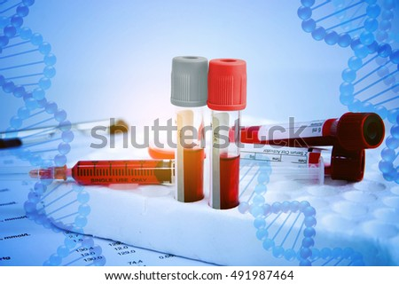 Blood Collection Stock Images, Royalty-Free Images & Vectors ...