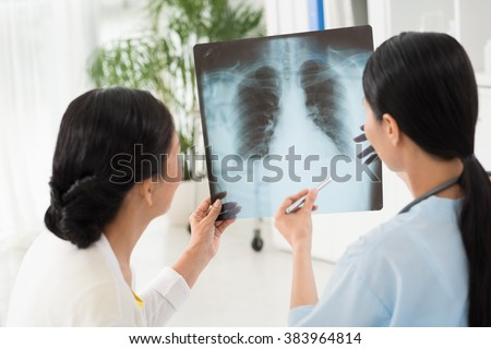 Doctor and patient looking at chest x-ray  together - stock photo