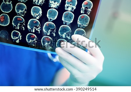 Doctor attentively examines the MRI scan of the patient. - stock photo