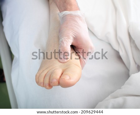doctor examines foot of heavy patient with edema - stock photo