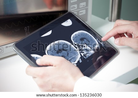 doctor examining a brain cat scan on a digital tablet - stock photo