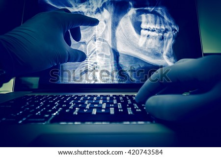 Doctor Examining Spine and Head X Ray Scan Images on His Laptop Computer. Medical Application for X-Ray Display and Examination. Radiology Theme. - stock photo